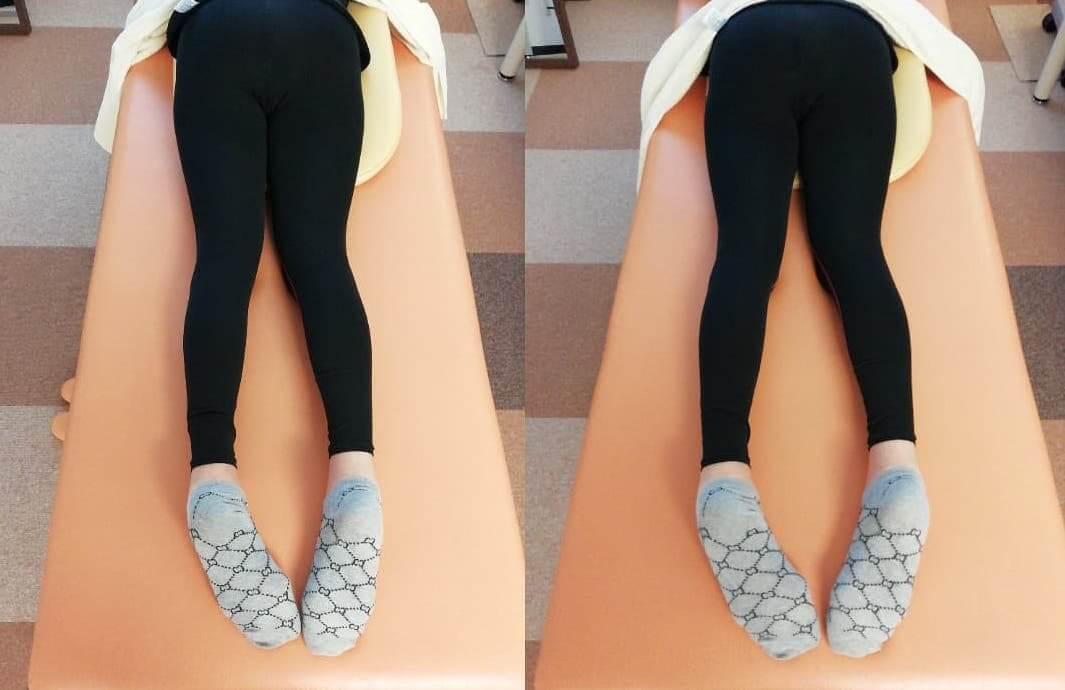 骨格矯正で足の長さを揃える